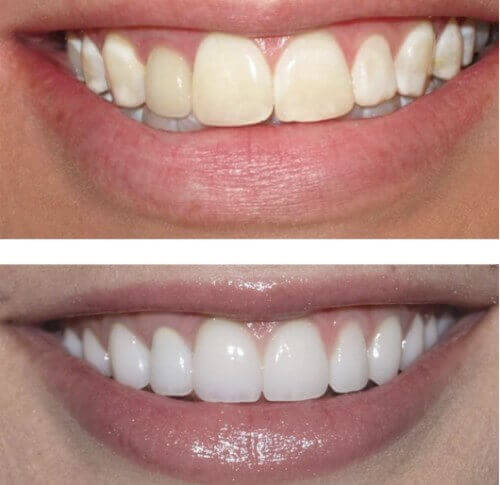 Belissas whitening - Before and After
